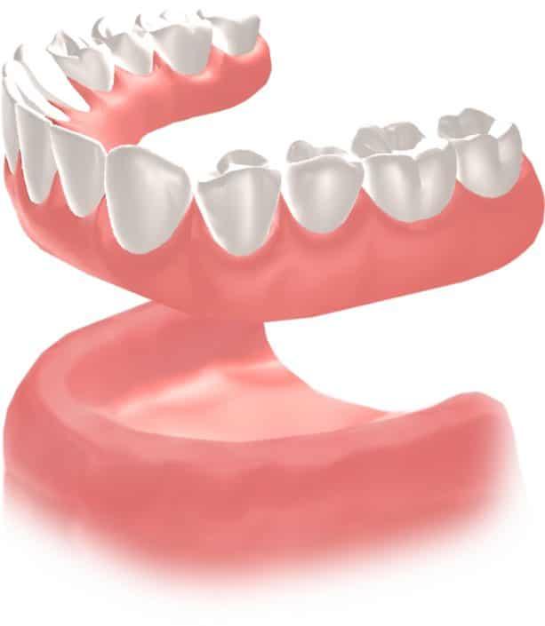 Implantes Dentales Straumann Edentulo inf1