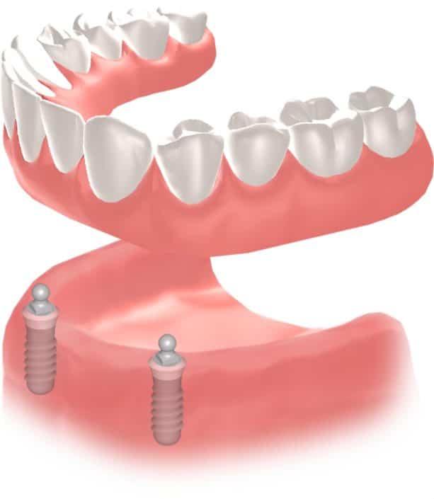 Implantes Dentales Straumann Edentulo inf3