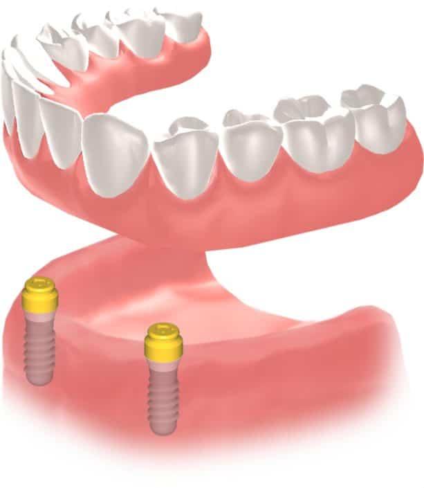 Implantes Dentales Straumann Edentulo inf4