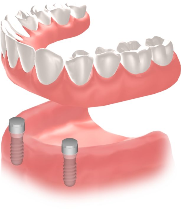 Implantes Dentales Straumann Edentulo inf5