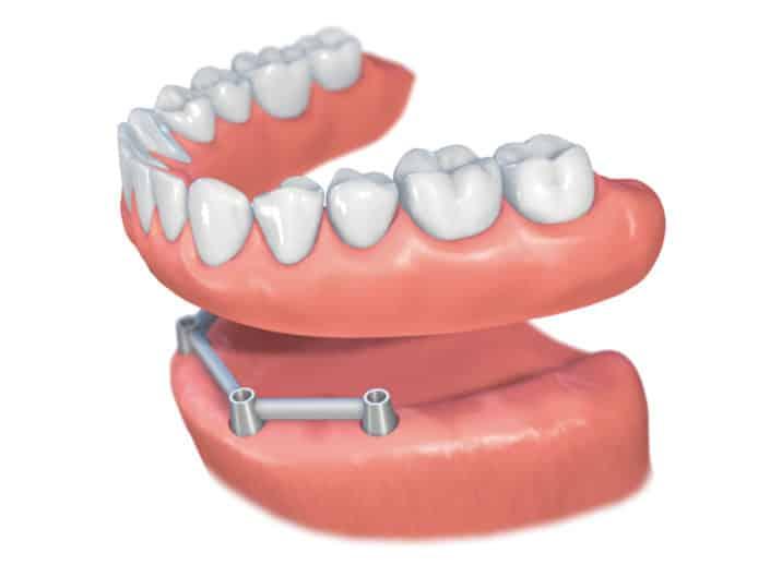 Implantes Dentales Straumann Edentulo inf6'