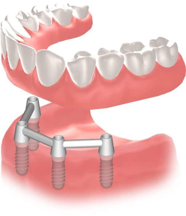 Implantes Dentales Straumann Edentulo inf6