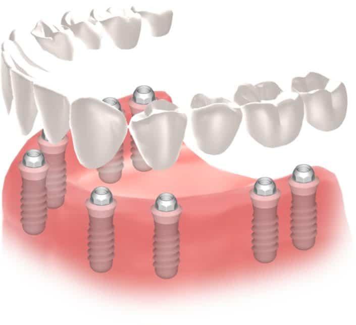 Implantes Dentales Straumann Edentulo inf7