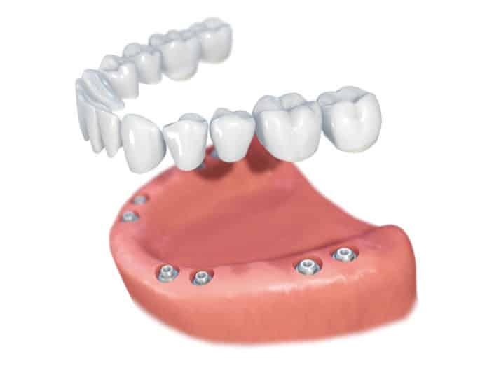 Implantes Dentales Straumann Edentulo inf8