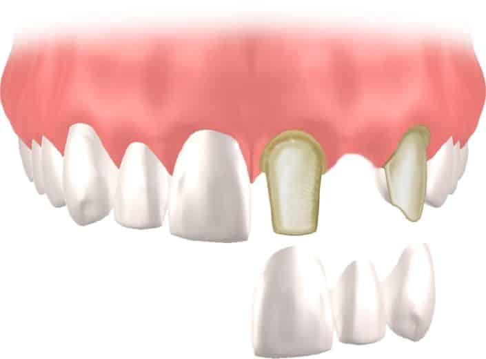 Implantes Dentales Straumann Puente1