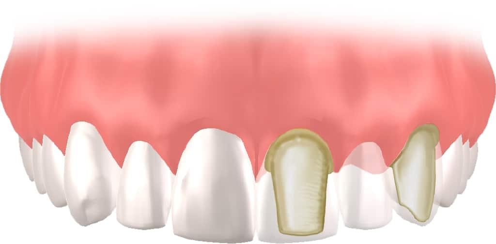 Implantes Dentales Straumann Puente2
