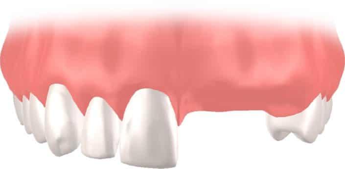 Implantes Dentales Straumann Puente3