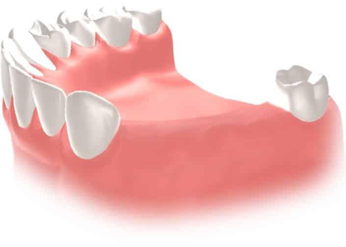 Implantes Dentales Straumann Puente5