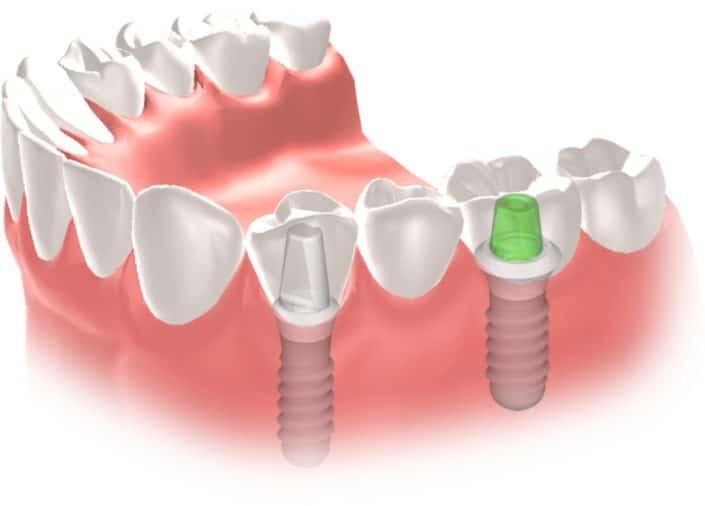 Implantes Dentales Straumann Puente6