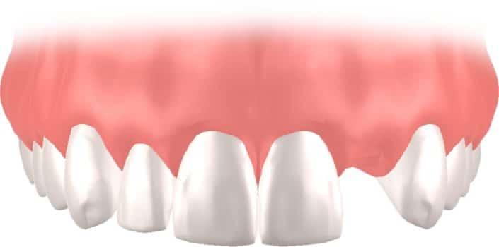 Implantes Dentales Straumann unitario6