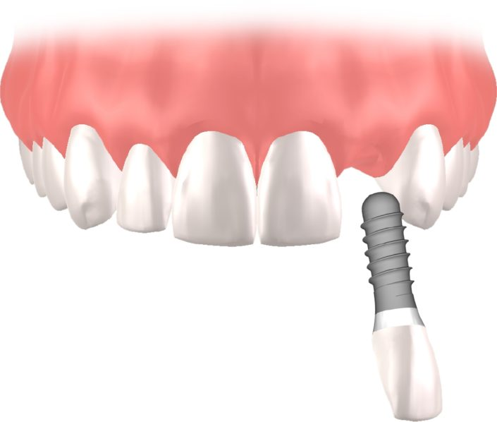 Implantes Dentales Straumann unitario7