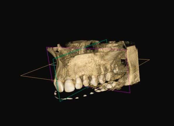 Anatomía Radiodiagnóstico 2d 3d