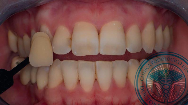 Antes Blanqueamiento Dental