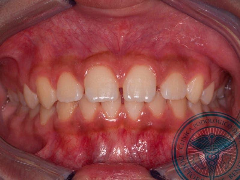 Antes Ortodoncia Autoligado