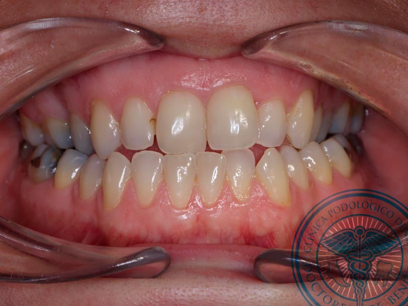 Antes Ortodoncia invisalign