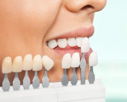 blanqueamiento dental clínica