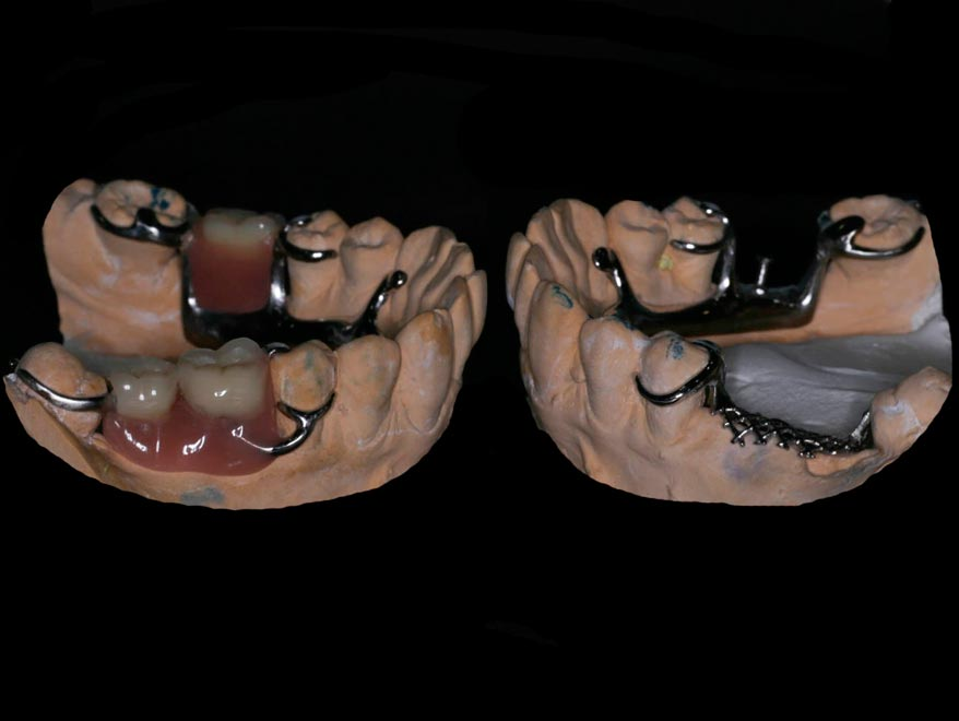 Dentadura Removible Esquelética