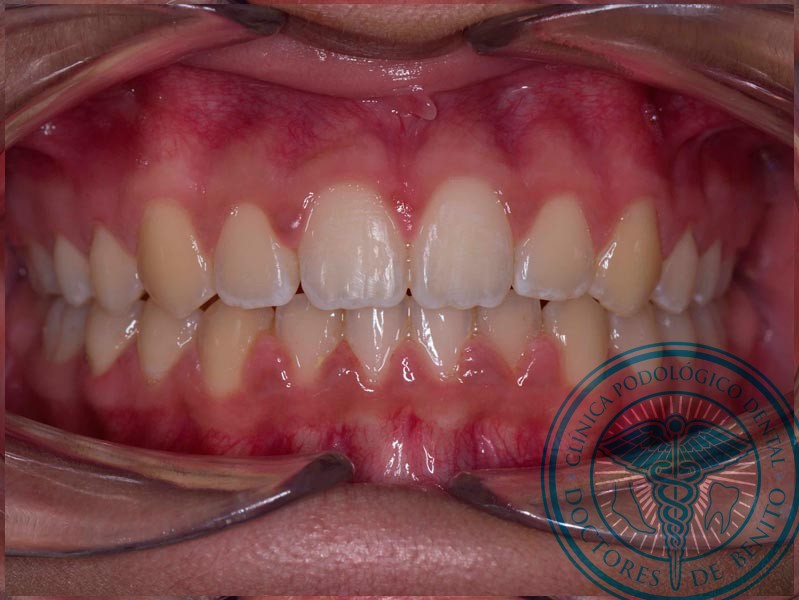 Después Ortodoncia Autoligado