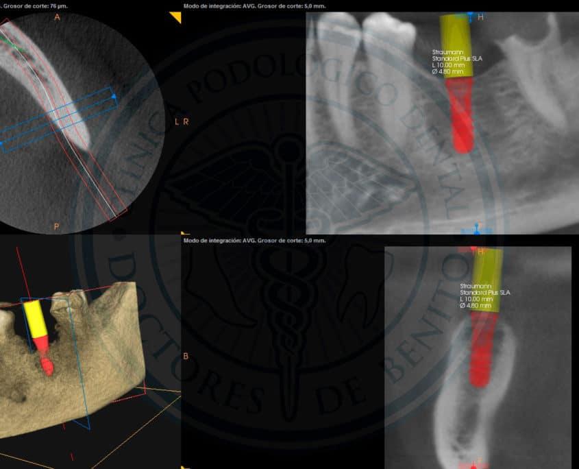 Ejemplo 1 Implante Straumann