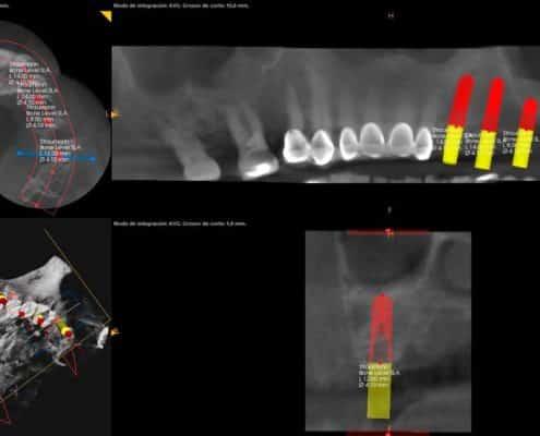 Escaner Dental Radiodiagnóstico 3D