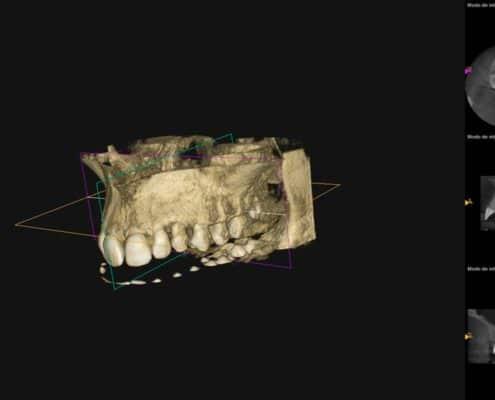 Escaner Dental Radiodiagnóstico 3D Dentadura