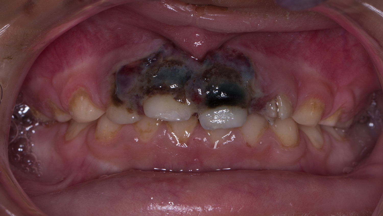 golpes en dientes de leche