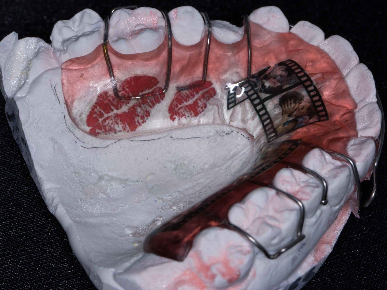 Retención de Ortodoncia